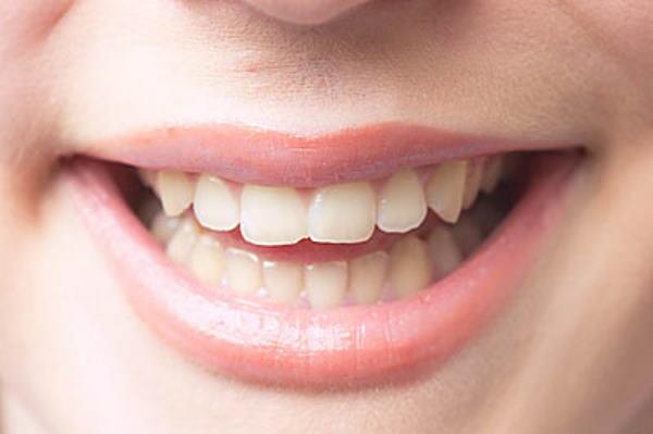 Kako izbjeći loš zadah