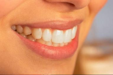 Izbjeljivanje zubi – kako imati zdrave i bijele zube [ ZDRAVLJE ]