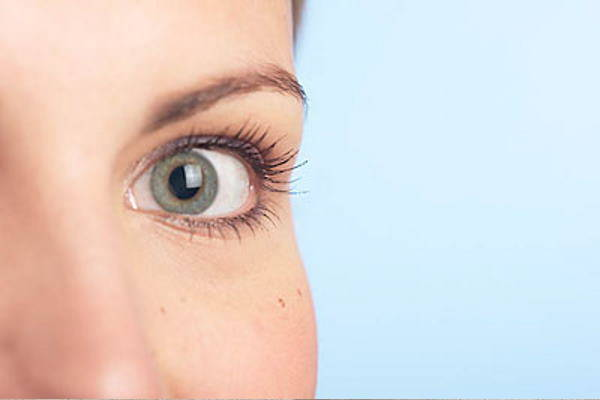 Izbjeljivanje sunčanih pjega – hiperpigmentacije