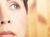 Hiperpigmentacija kože