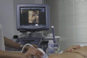 Je li previše ultrazvuka tijekom trudnoće štetno?